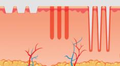 фракционный фототермолиз